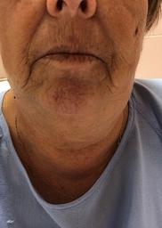 Sialoadenitis submandibular inducida por contraste yodado